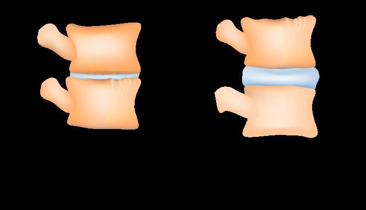 dyski kręgosłupa
